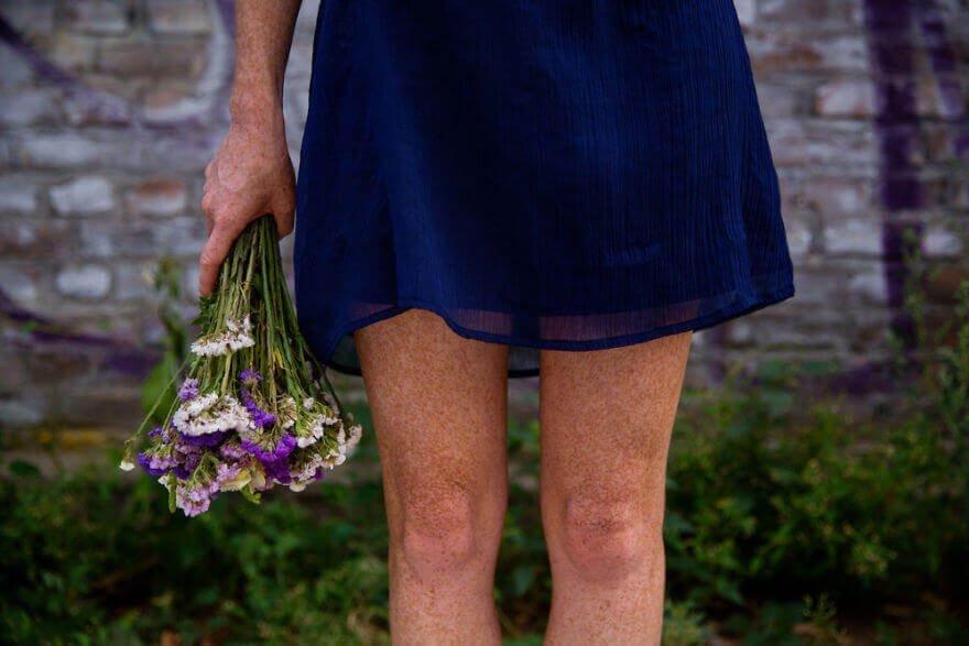 Покрытые веснушками ногами девушки из Будапешта